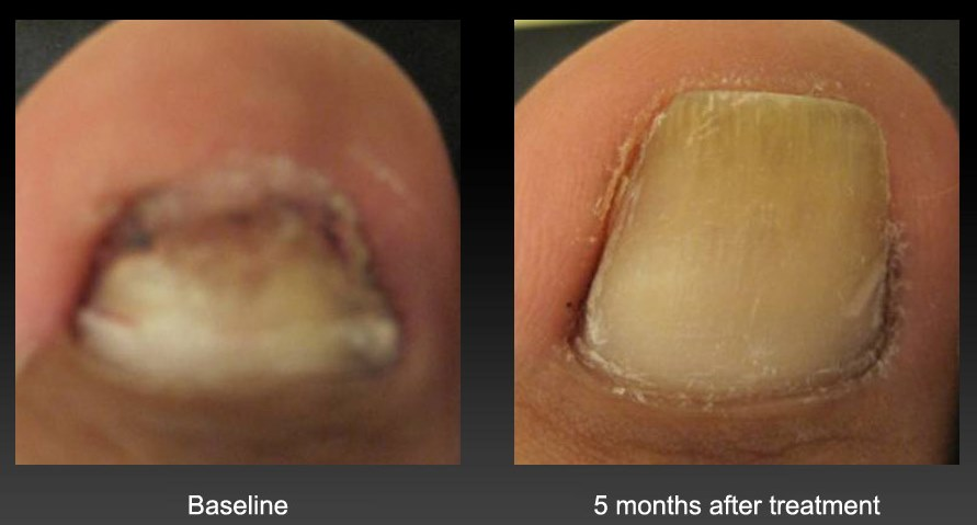 How to Treat Cracked Nails | HowStuffWorks